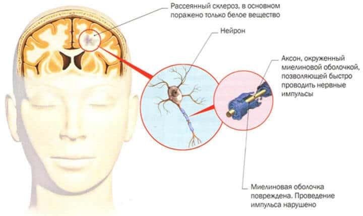 лечение рассеянного склероза в россии поздравление